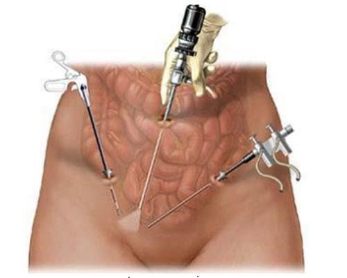 Эндоскопическое устранение варикоцеле