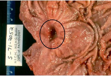 Язвенная болезнь – хроническое заболевание, при котором в желудке и двенадцатиперстной кишке образуются язвы