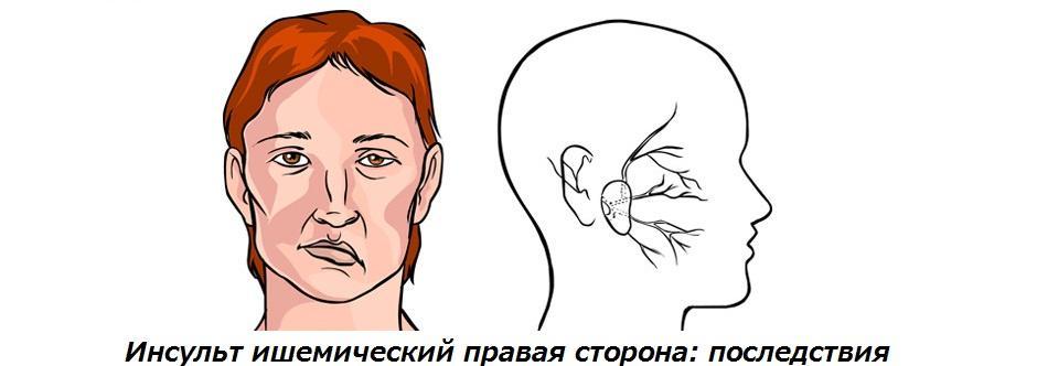 Ишемический инсульт правой стороны (полушария) головного мозга