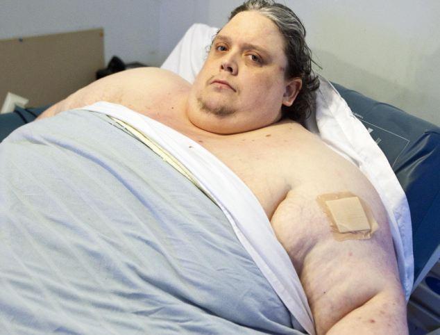 Ожирение и связанные с этим боли