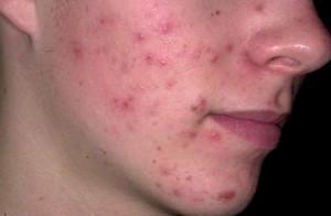Низкий уровень гигиены, аллергия, плохая экология приводят к высыпаниям