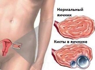 Киста яичника: причины, симптомы