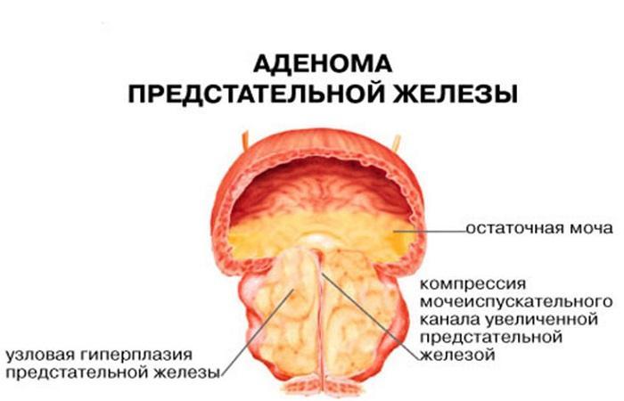 Аденома простаты у мужчин: симптомы, лечение, препараты