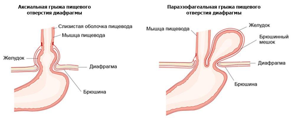 Аксиальная и параэзофагеальная грыжа пищеводного отверстия диафрагмы