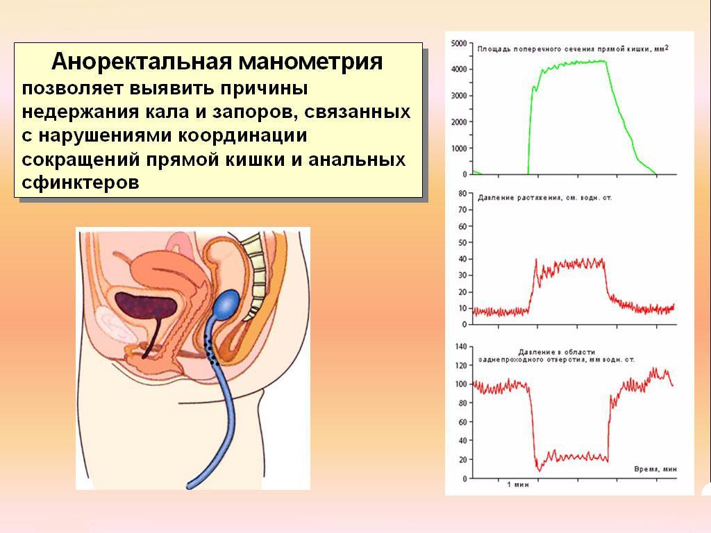Анализ аноректальная манометрия