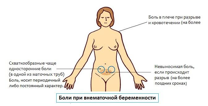 Боли при внематочной беременности