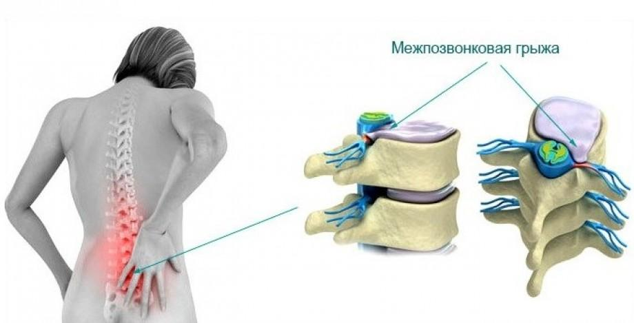 Боль – первичный и ключевой симптом межпозвоночной грыжи