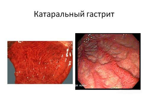 Вид желудка изнутри. Катаральный гастрит