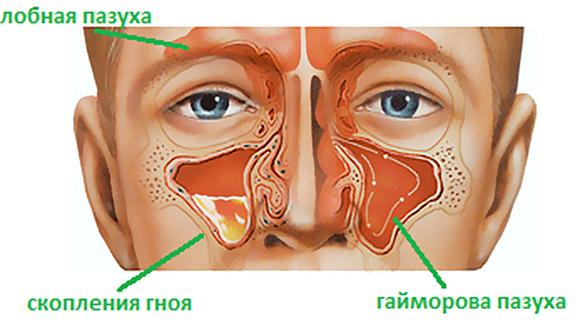 Воспалительный процесс при гайморите