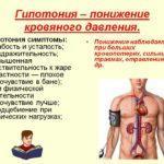 Гипотония: лечение в домашних условиях