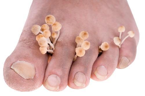 Лечение ногтевого грибка березовым дегтем