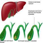 ЖКБ (хронический калькулезный холецистит): лечение