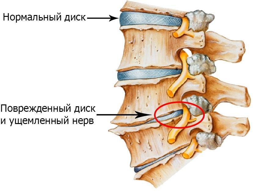 Защемление нервов при остеохондрозе