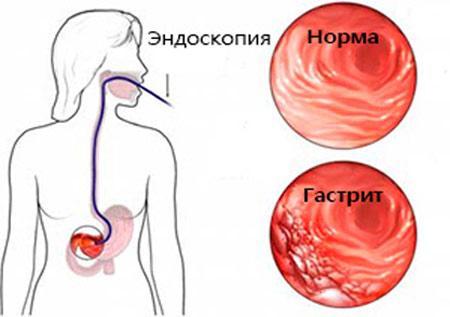 Здоровый желудок и желудок с гастритом