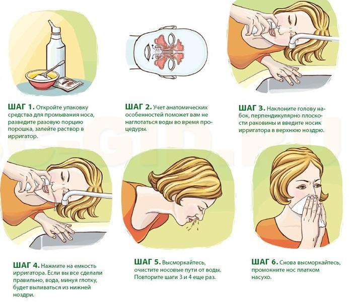 Инструкция как правильно промывать нос