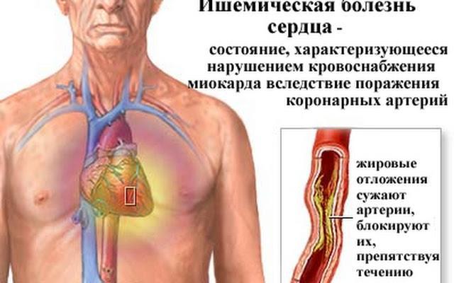 Ишемическая болезнь сердца может спровоцировать возникновение тахикардии