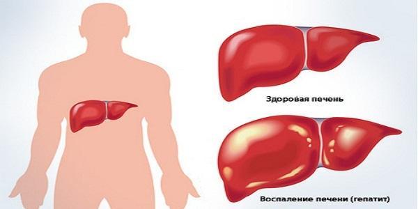 Как лечить гепатит С в домашних условиях
