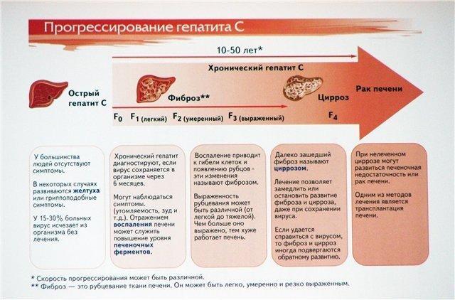 Как прогрессирует гепатит С
