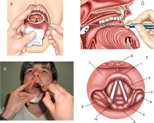 Как проходит процедура ларингоскопия