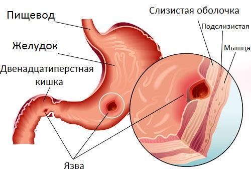 Лечение язвы желудка народными средствами самые эффективные
