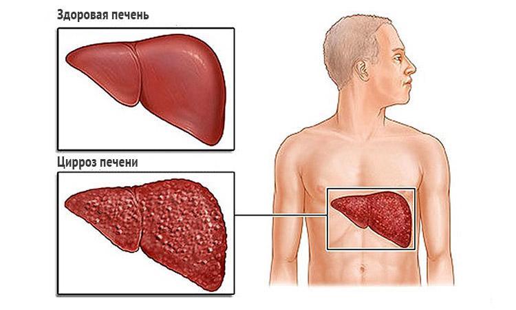 Лечится ли гепатит С полностью - подробная информация