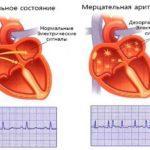 Мерцательная аритмия: лечение, таблетки