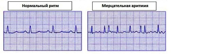 Мерцательная аритмия на кардиограмме