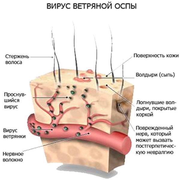 Механизм заболевания опоясывающим лишаем