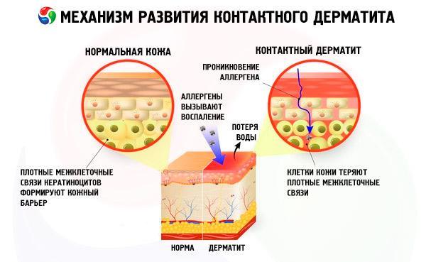 Механизм развития контактного дерматита