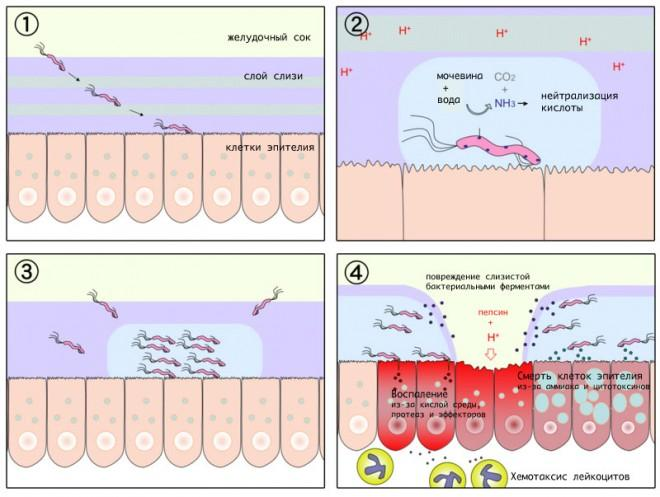 Механизм развития язвенной болезни