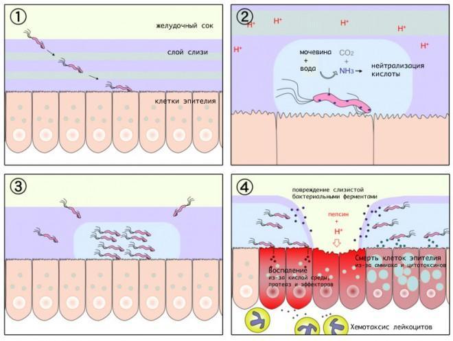 Антибиотики при язве желудка и гастрите: схемы лечения