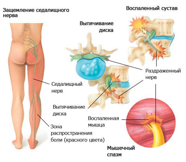 Наглядное изображение грыжи межпозвоночного диска поясничного отдела