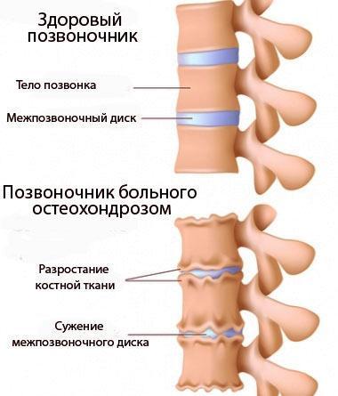 Наглядное изображение отличия позвоночника с остеохондрозом и здорового позвоночника