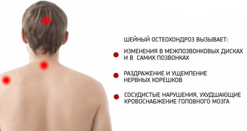 Нарушения организма к которым приводит шейный остеохондроз
