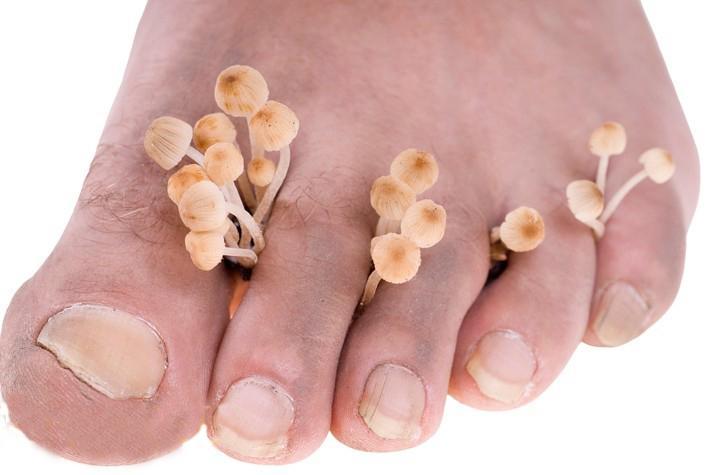 Лечение грибка ногтя - запущенная форма