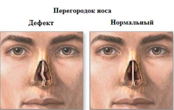 Нормальная перегородка носа и перегородка носа с дефектом