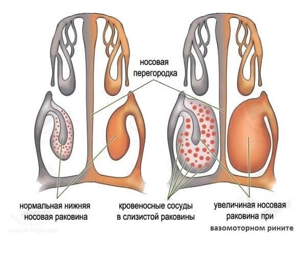 Нормальное состояние носовой полости и носовая полость при рините