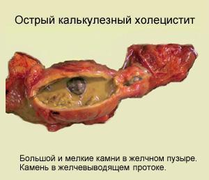 Острый калькулезный холецистит