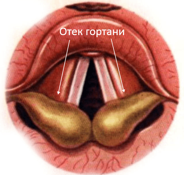 Отек горла - причины возникновения, симптомы появления и способы лечения