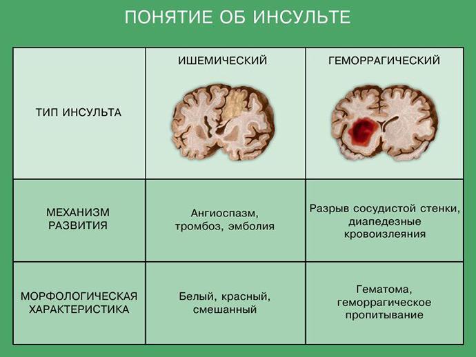 Понятие об инсульте