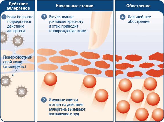 Поражение организма аллергическим дерматитом