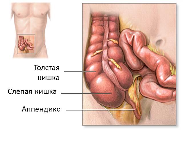 Признаки аппендицита у женщин, симптомы