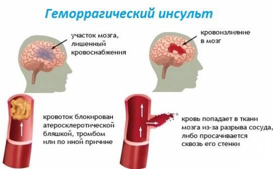 Процесс возникновения геморрагического инсульта