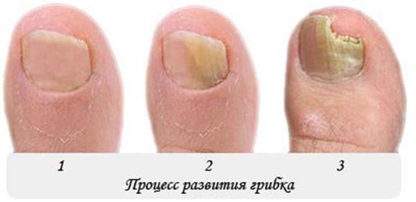 Процесс развитие грибка на ногтях