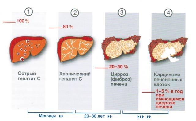 Степени гепатита С