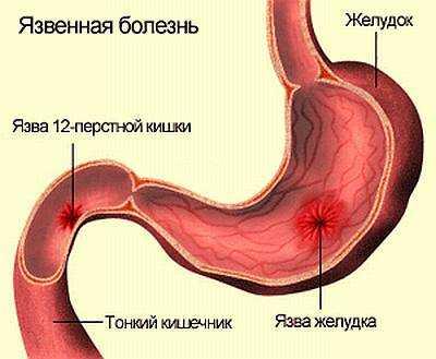Язвенная болезнь желудка и двенадцати перстной кишки