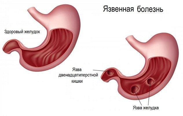 Медикаментозное лечение язвы желудка и двенадцатиперстной кишки  Язвенная болезнь желудка