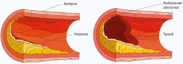 зависимость холестерина от возраста таблица