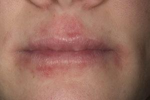 Атопический дерматит вокруг губ