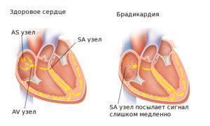 Брадикардия: симптомы и лечение. Какие таблетки принимать во время приступа